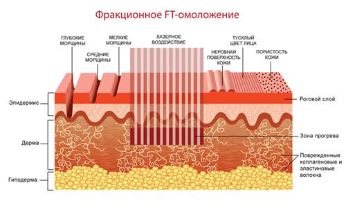 Фракционное лазерное омоложение